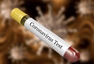 March 17: Vietnam reveals five more coronavirus cases, Hanoi tops with 16